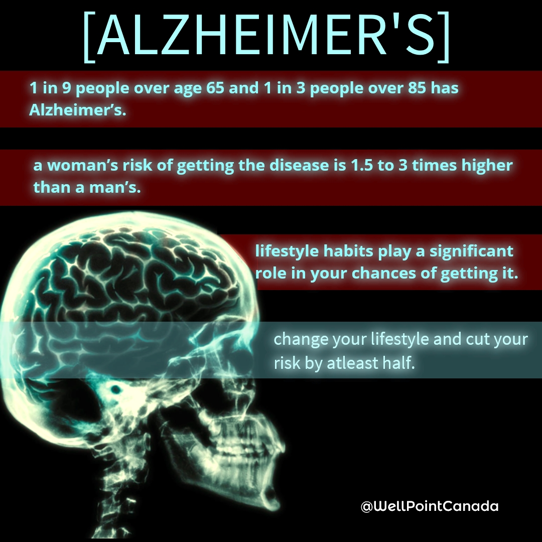 BABY BOOMERS FACE ALZHEIMER'S EPIDEMIC